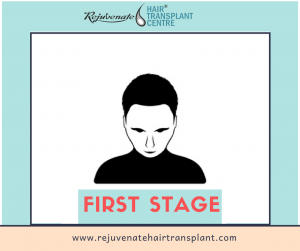 hair loss - stage 1