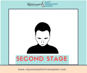 hair loss stage 2