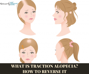 What is Traction Alopecia