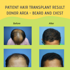 Donor Area - Beard and Chest Hair Transplant Result