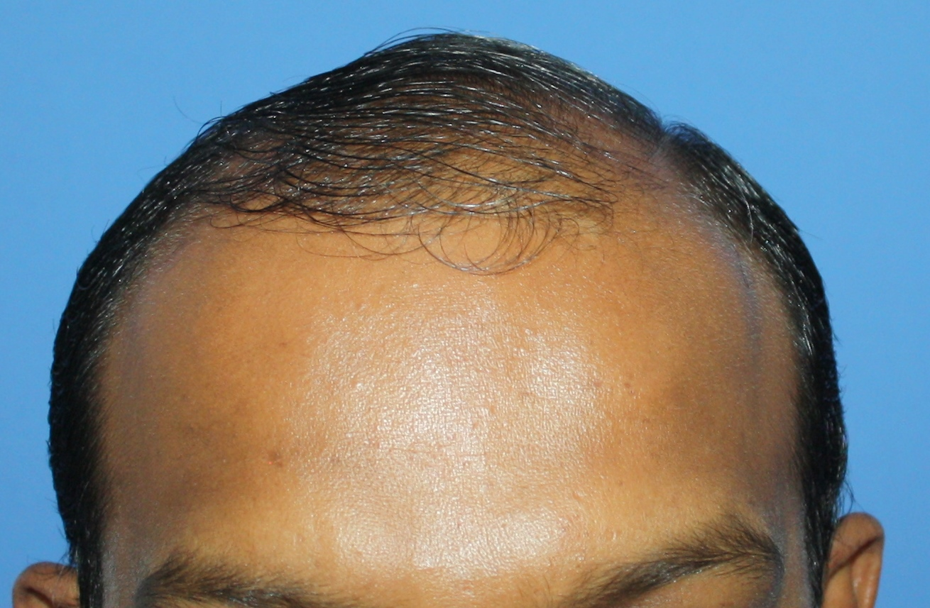 Before FUE Hair Transplant Front