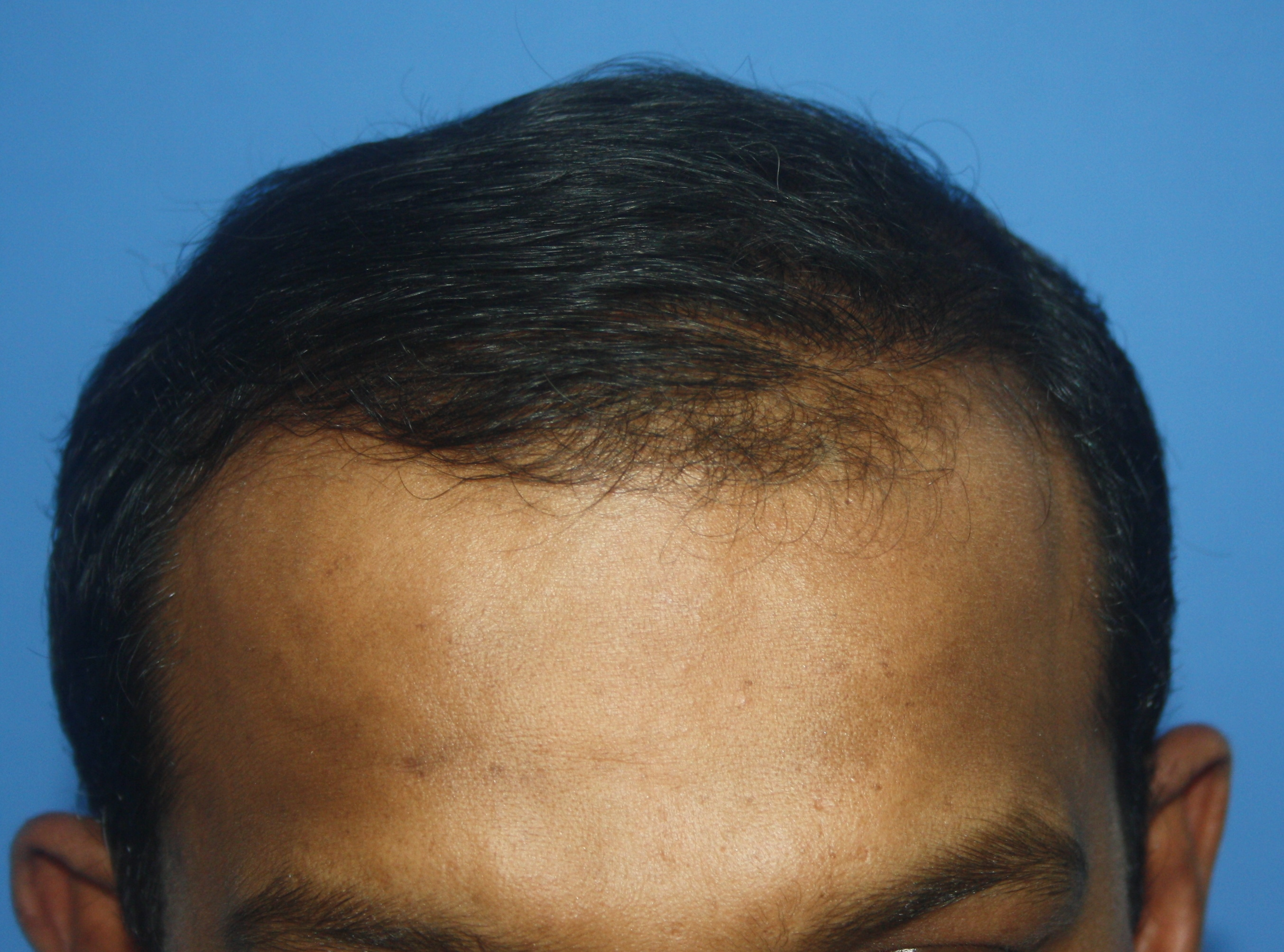 Before FUE Hair Transplant Front image