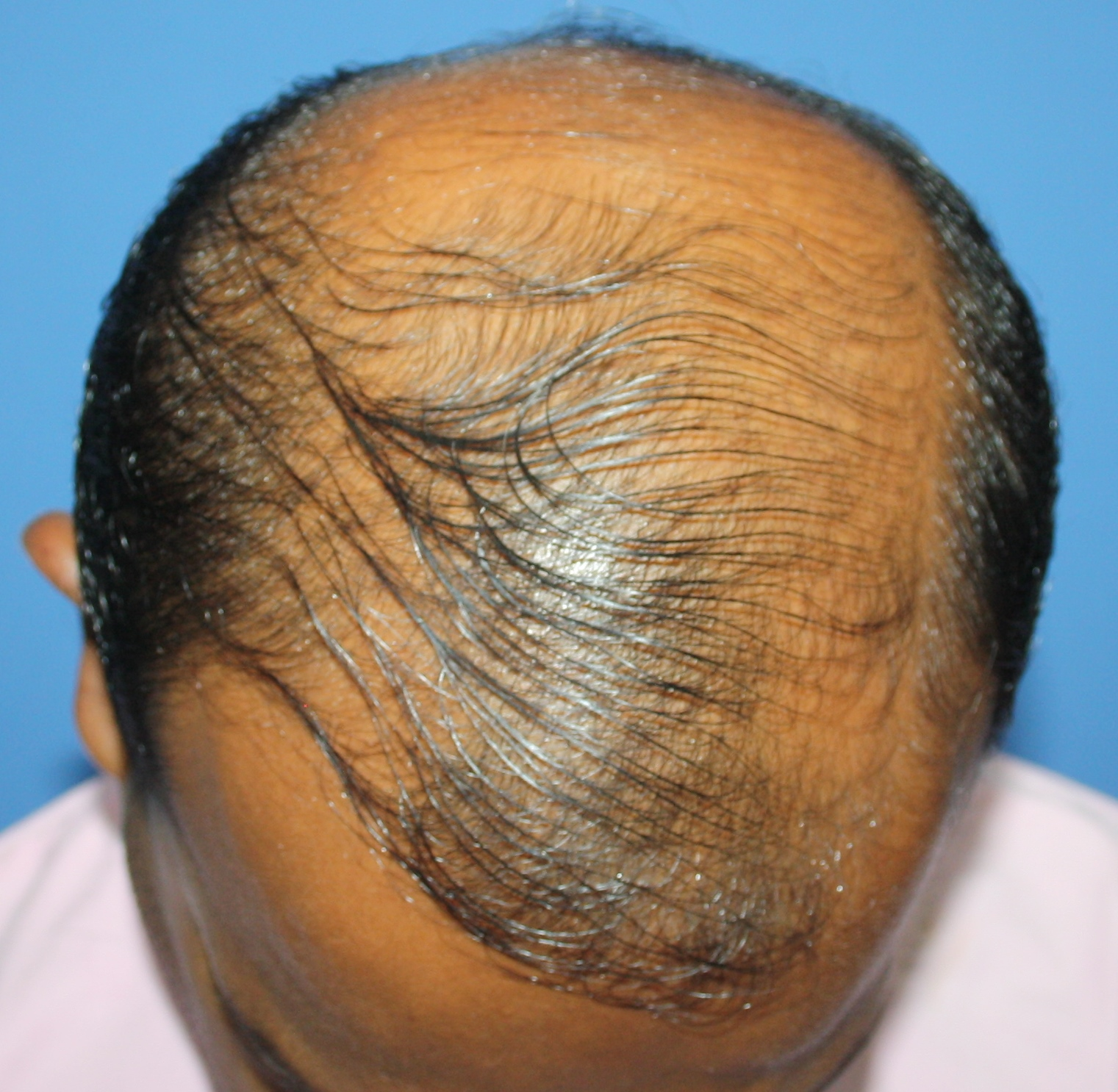 After FUE Hair Transplant Front image