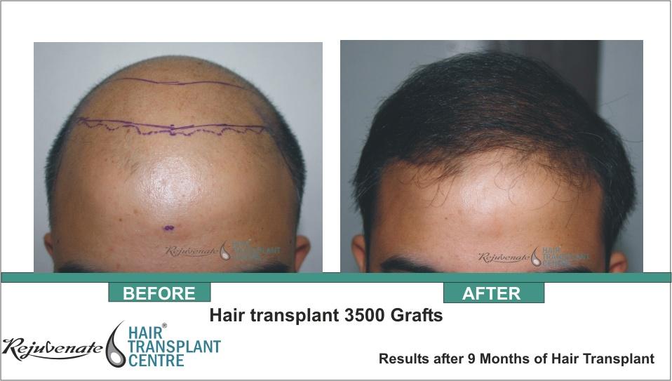Hair Restoration result