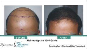 Hair Transplant 2500 Grafts