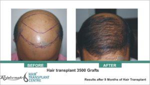 Hair Transplant 3500 Grafts