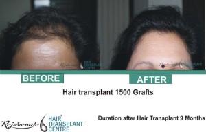 Hair Transplant 1500 Grafts