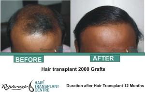 Hair Transplant 2000 Grafts