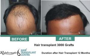 Hair Transplant 3000 Grafts 12