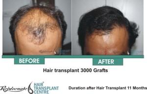 Hair Transplant 3000 Grafts