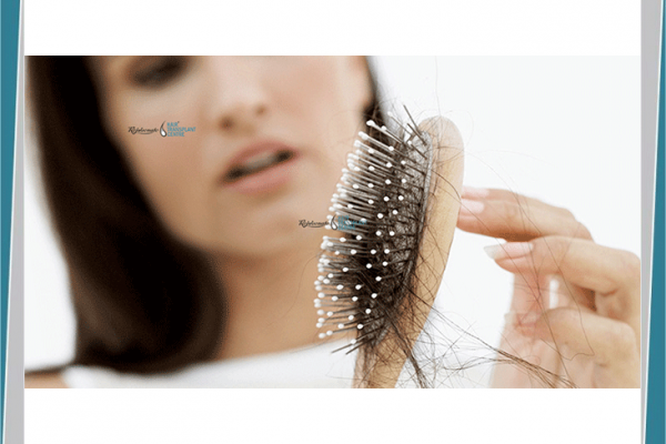 What factors are responsible for hair fall in women and how it can be controlled