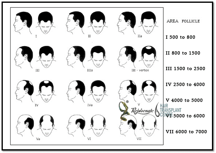 how-many-hair-folliclies-hair-i-need