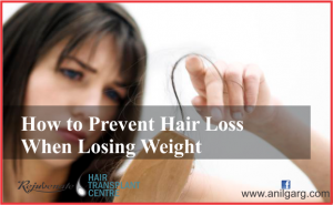 Prevent Hair Loss When Losing Weight - Rejuvenate