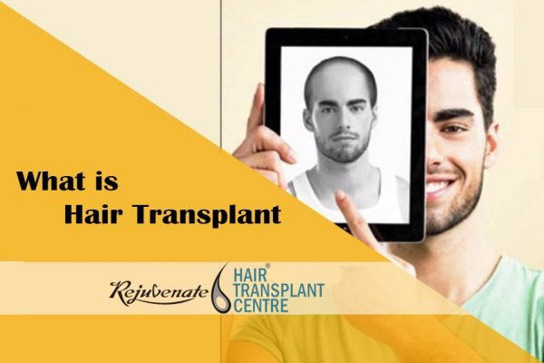 What is Hair Transplant