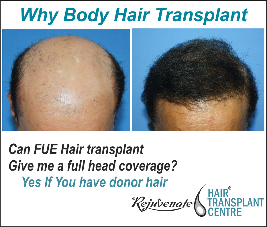 Why Body Hair Transplant (BHT)