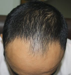 How Hair transplant can change life of a person - Result 1