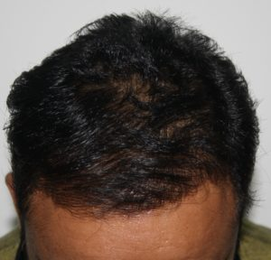 How Hair transplant can change life of a person - Result 4