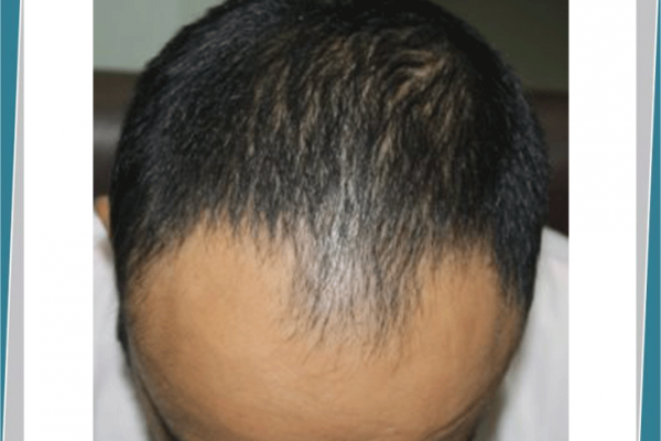 How Hair Transplant Can Change Life of a Person