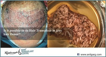 Is it possible to do Hair Transplant in grey hair Donor