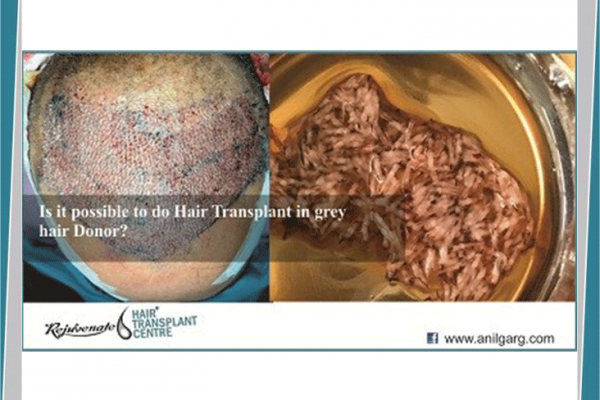 Possible Hair Transplant Grey Hair Donor