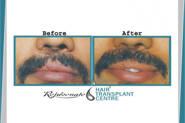Hair Transplant Result For Facial Scar-1(Cleft Lip Scar)