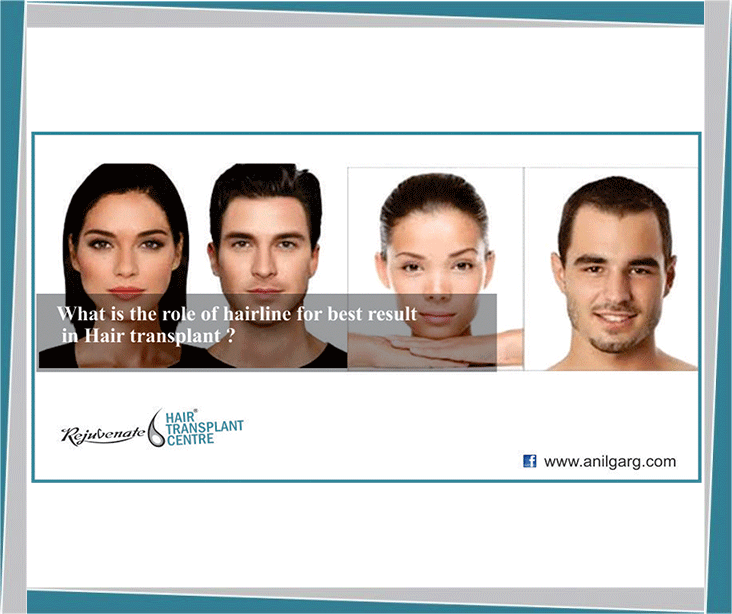 What is the role of hairline for best result in Hair transplant