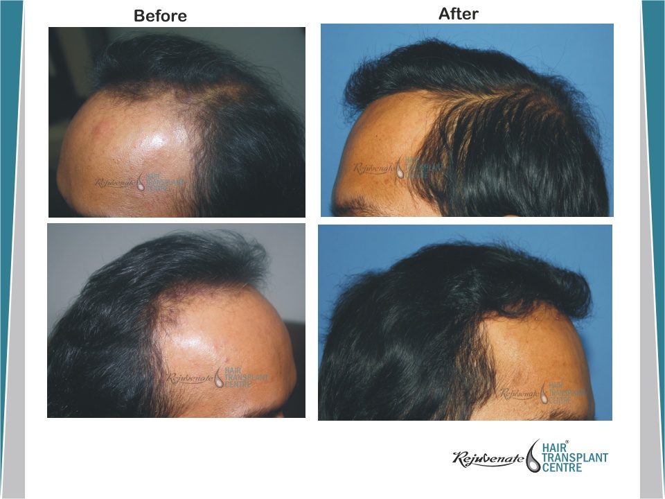POWERED HAIR TRANSPLANT 2