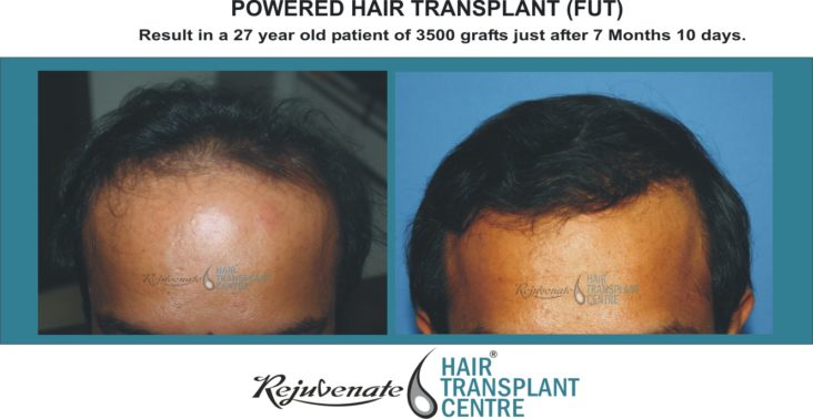 POWERED HAIR TRANSPLANT fUT