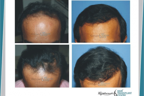 Powered Hair Transplant (FUT) Result in a 27 year old patient of 3500 grafts