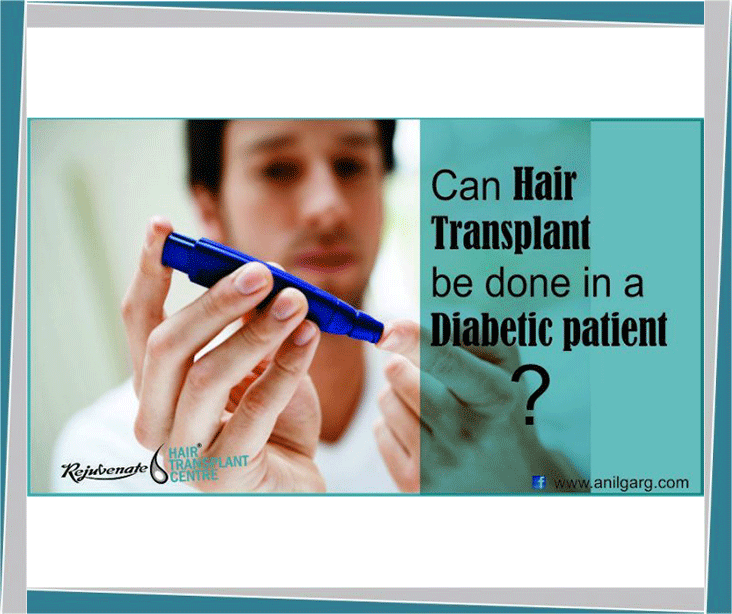 Hair Transplant for a Diabetic Patient