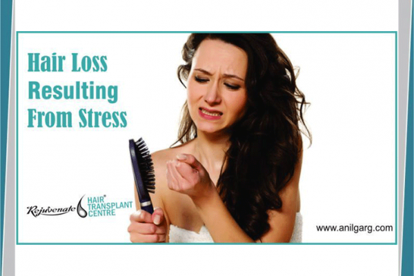 Hair Loss Resulting From Stress