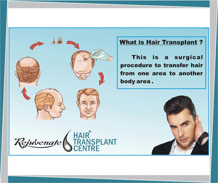 Difference between Hair and FollicleGraft