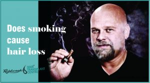 Does smoking cause hair loss