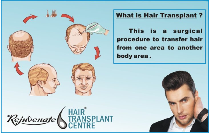 What is the Difference between a hair and a follicle/graft.