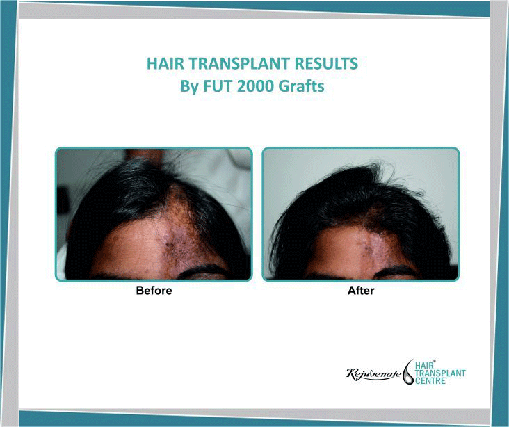 Hair Transplant in a Burn Case
