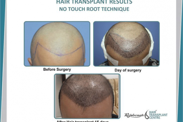 Latest Techniques to Improve Result of Hair Transplant by FUE
