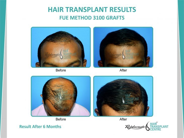 Hair Transplant Results FUE Method 3100 grafts