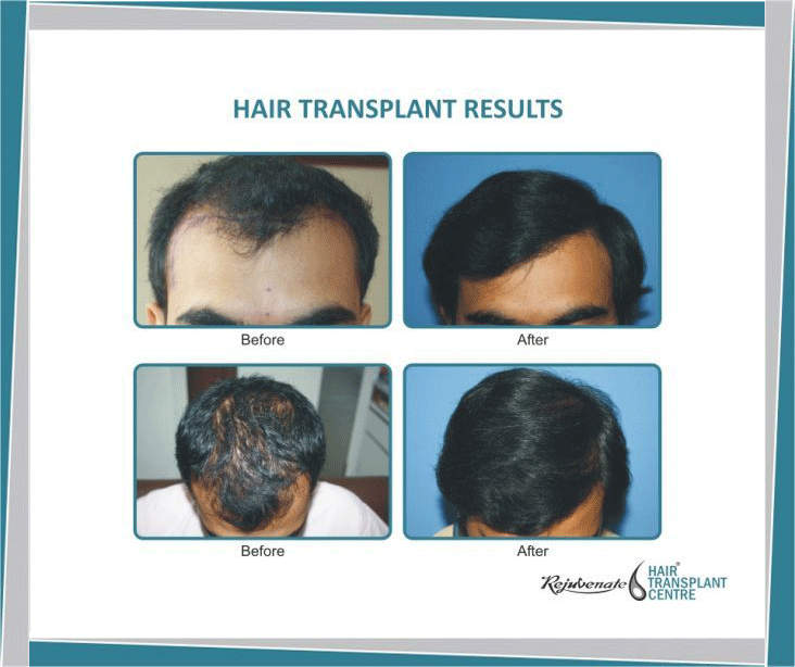 Can Hair Transplant Give Natural Look