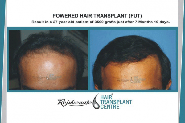 FUT Result in a 27-yr-old Patient of 3500 Grafts Just After 7 Months 10 Days