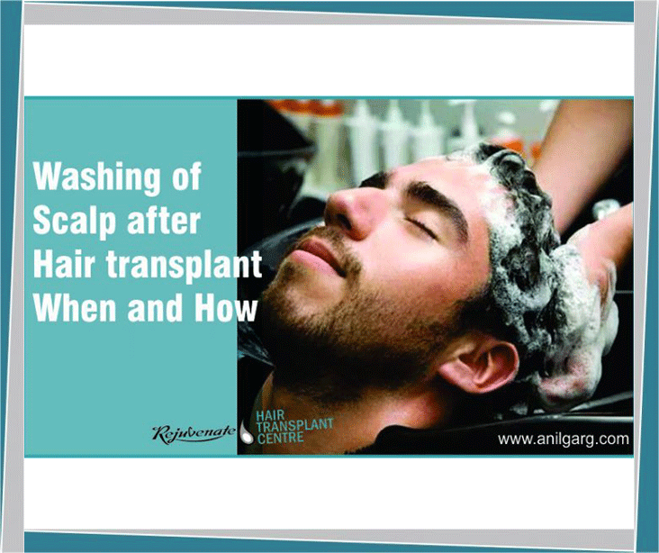 Washing Scalp After Hair Transplant When and How