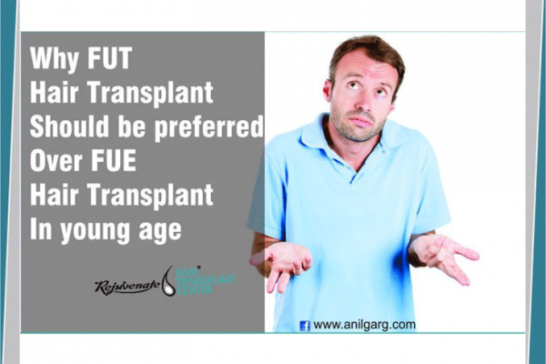 Why FUT hair transplant should be preferred over FUE hair transplant in young age