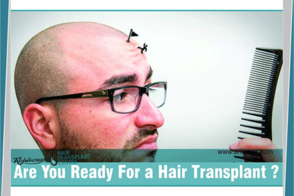 Are You Ready For a Hair Transplant