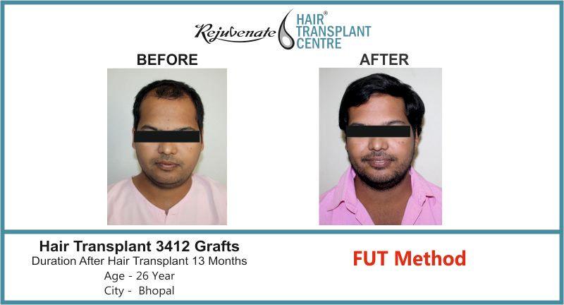 Hair Transplant Bhopal