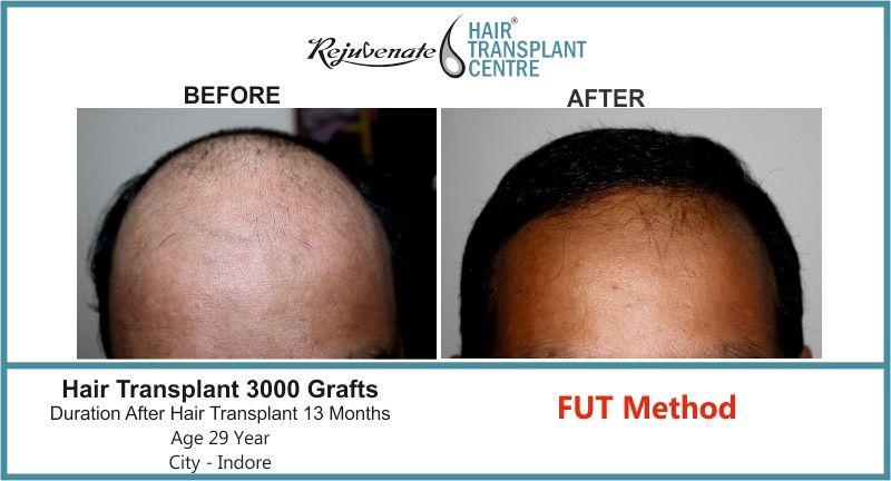 Hair Transplant FUT