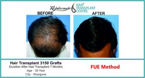 Hair Transplant in India top result 3150 graft - Rejuvenate