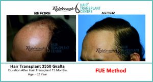 100% Successful Hair Transplant Result by FUE Method - Rejuvenate Hair Transplant Centre