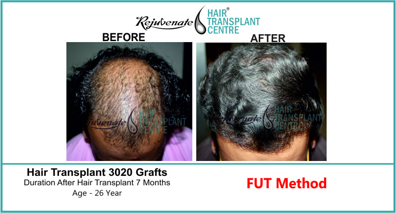 26 Yr FUT Hair Transplant Result Front-Side Image 3020 Grafts 1