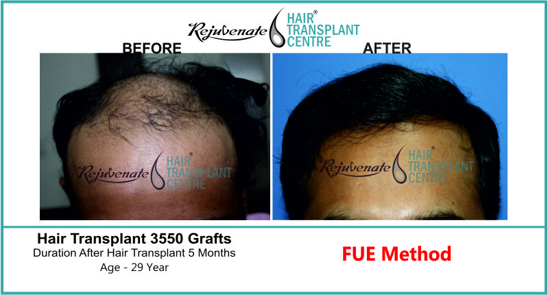 26 Yr FUT Hair Transplant Result Front-Side Image 3020 Grafts