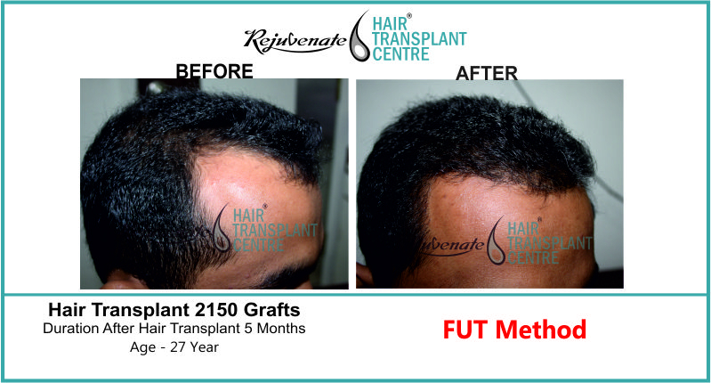 27 Yr FUT Hair Transplant Result Right-Side Image 2150 Grafts