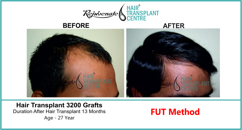 27 Yr FUT Hair Transplant Result Right-Side Image 3300 Grafts